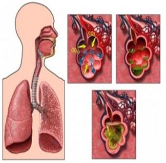 paru-paru basah